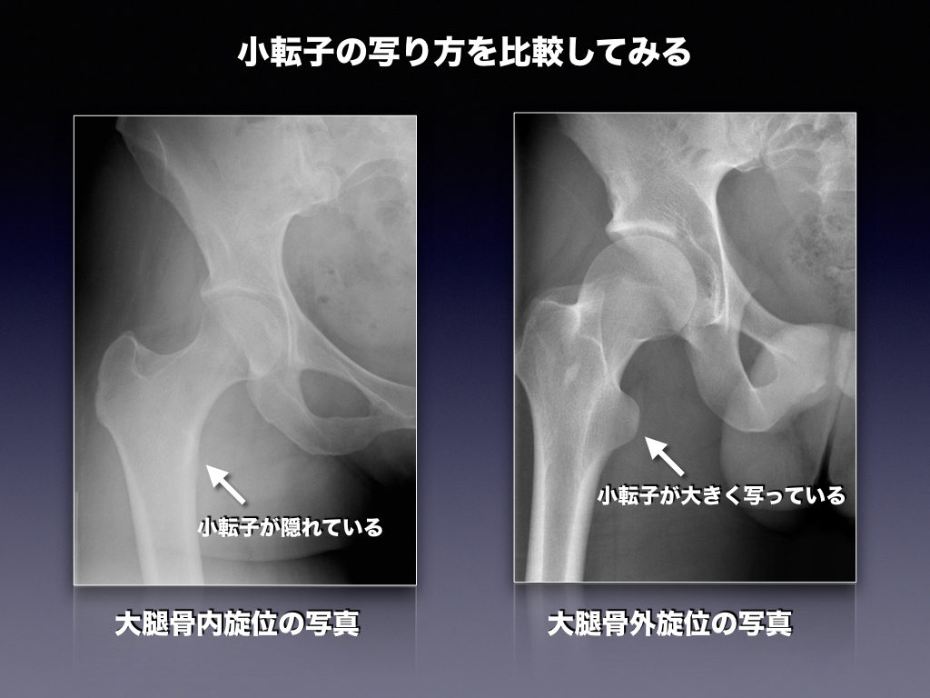 部 転 骨折 大腿 骨 子